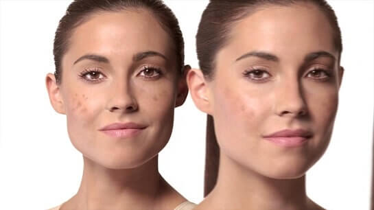 Best Dark Spot Correctors for Dark Skin